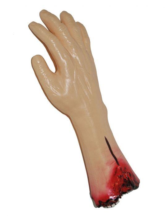 Afgehakte arm